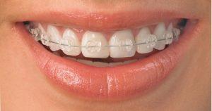 ortodoncia en medellin