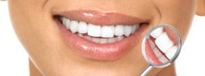 diseno de sonrisa-2