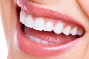 implantes dentales - dentioral