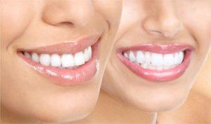 ortodoncia-diseno de sonrisa