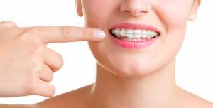 ortodoncia en medellin-2
