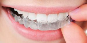 ortodoncia en medellin-dentioral