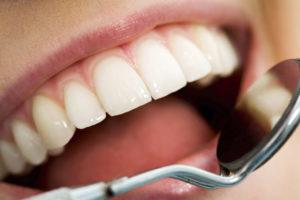 endodoncia en medellin