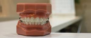 Ortodoncia en Dentioral