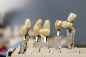 Claves para el éxito de una ortodoncia